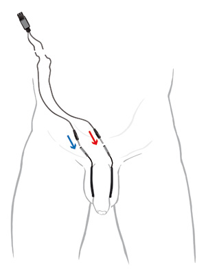 Elektrostimulation penis